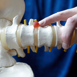 rachis surgery