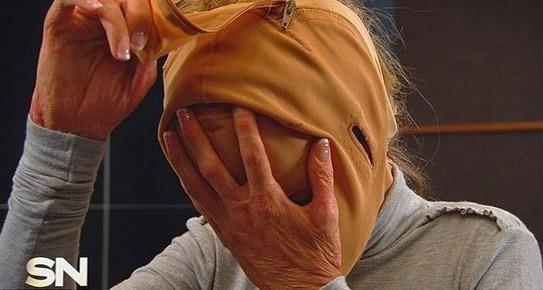 Selepas 2 Tahun Wanita Ini Sembunyikan Wajahnya yang Terbakar, Hasilnya Sangat Menakjubkan