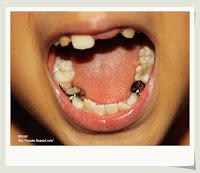 牙齒空間維持器.假牙套