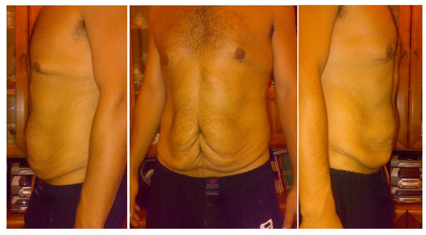 Ver Mas Fotos De Antes Y Despues Abdominoplastia