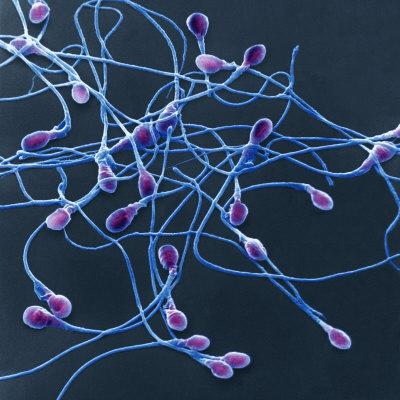 Cek Sperma di Lab Untuk Ketahui Kesuburan Pria
