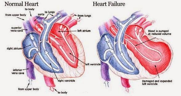 http://obatgangguanjantung.blogspot.com/2015/05/obat-gagal-jantung.html