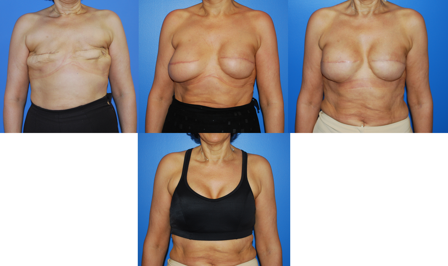 Фотки груди без силикона 20 фотография