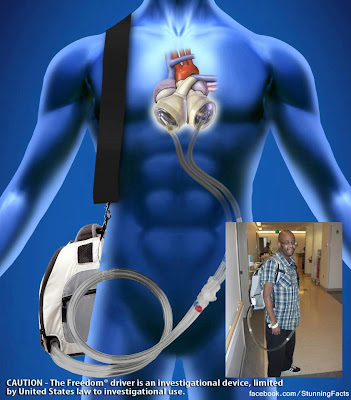 UCLA DOCTORS REMOVE MAN'S HEART, REPLACE IT WITH TOTAL ARTIFICIAL HEART