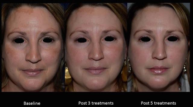 Carbon facial Dr. Shazia Ali