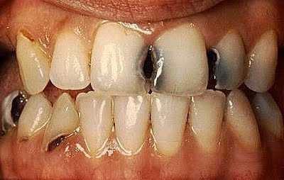 5 Tips dan Cara Perawatan Gigi Berlubang Cara Merawat Gigi Berlubang Ilustrasi Memiliki Gigi yang Berlubang