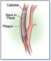 mengapa pasang stent, mengenal stent, pemasangan stent