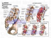 . degenerative arthritis, deconditioning etc.may cause the lumbar sprain .