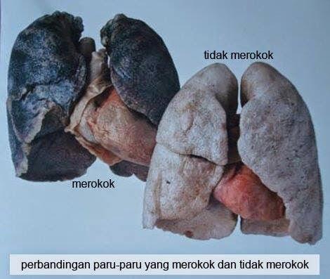 tips untuk berhenti merokok