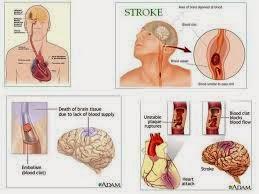 stroke parah