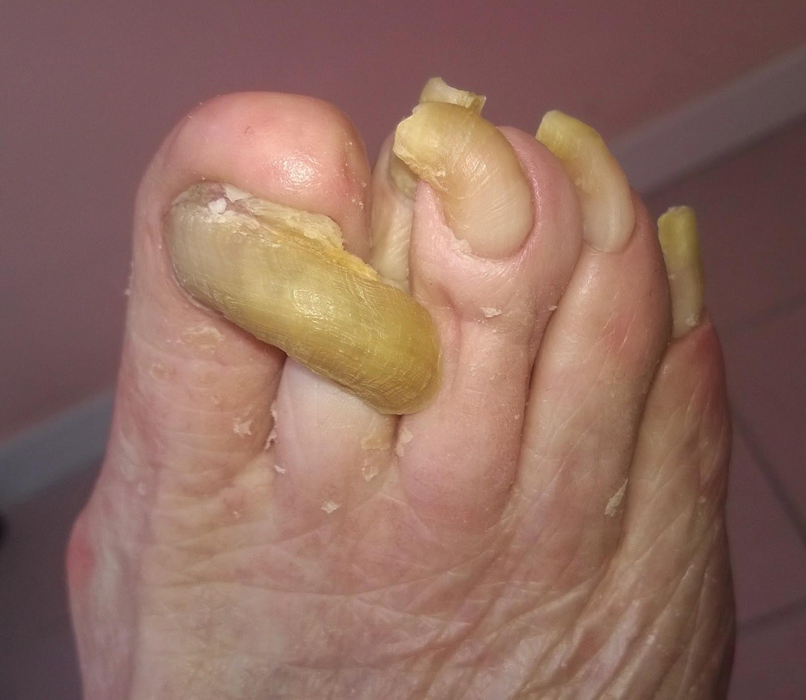 El hongo sobre las uñas de los pies el tratamiento por la sosa