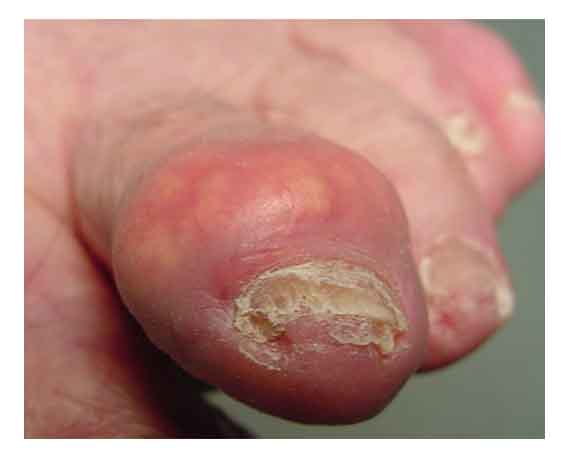 Gouty Tophus Removal