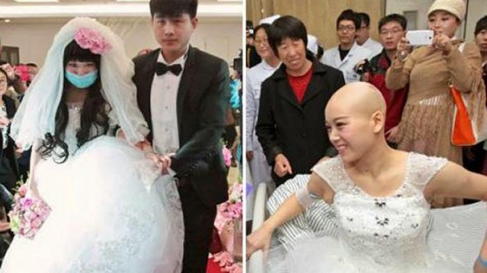 Gadis Penderita Kanker Ini Menikah dengan Pacarnya di Rumah Sakit