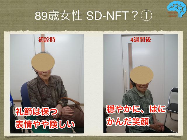 神経原線維変化型老年期認知症(SD-NFT)疑いの89歳女性の表情。