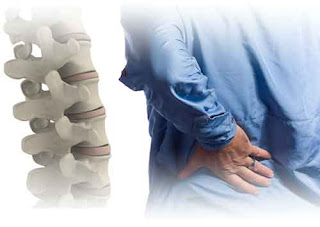 Back Pain- Chiropractic Care