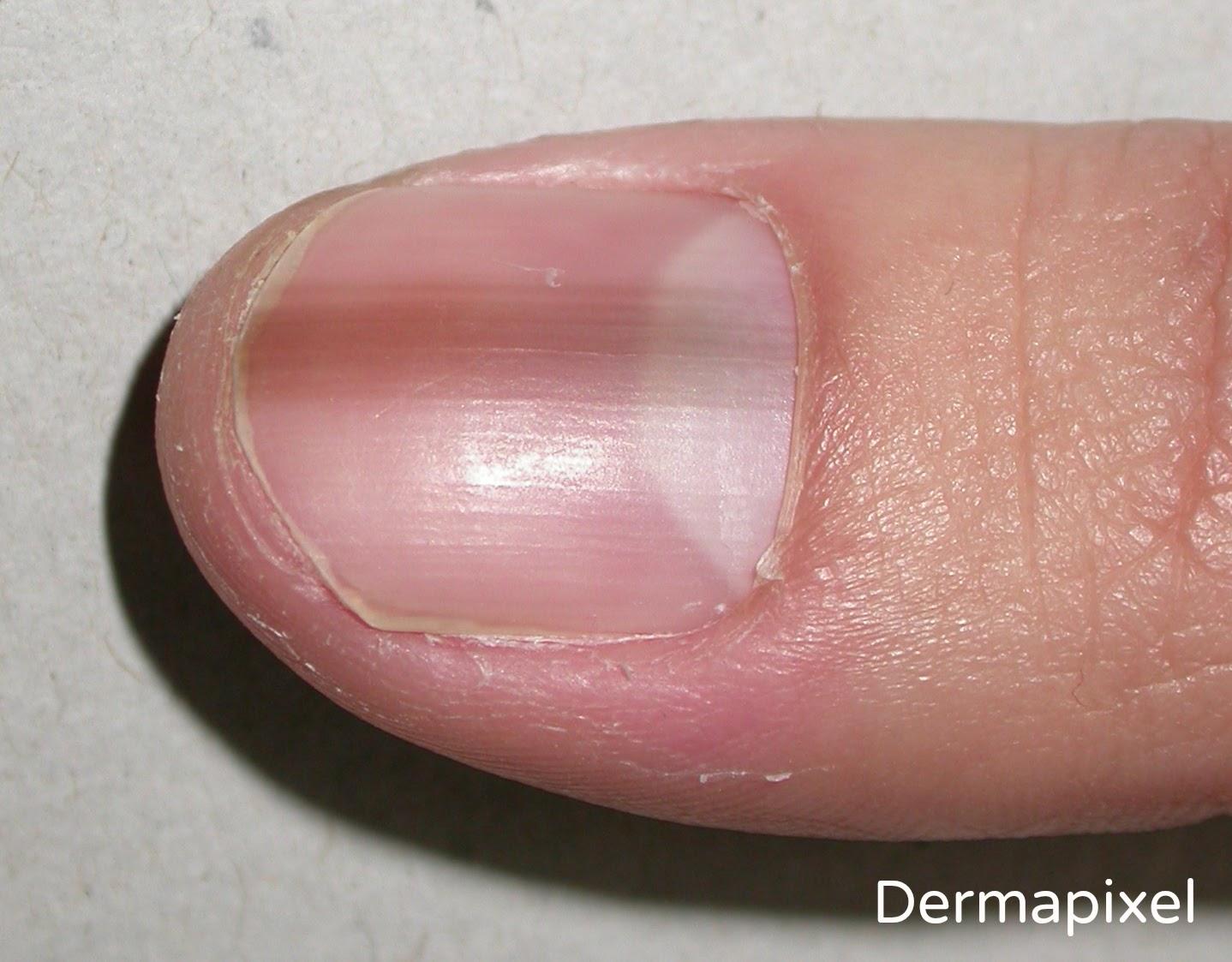 Boom - 10 peores casos de dedo del pie del camello de la