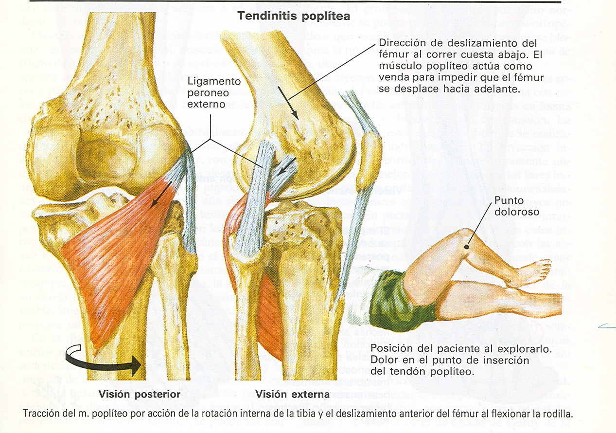 Tibia pain location tibia get free image about wiring diagram for Exterior knee pain