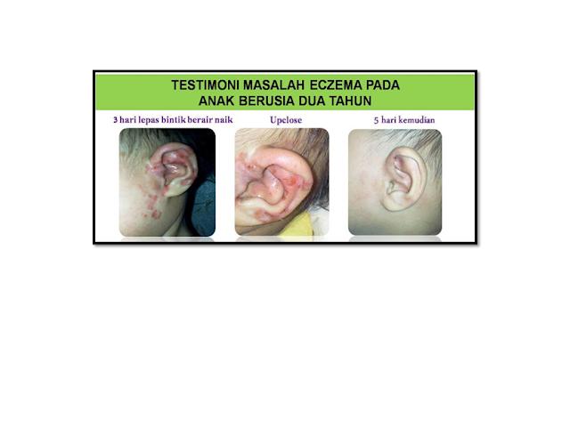 Ekzema ialah sejenis penyakit kulit yang menyebabkan radang, gatal, kering, mengelupas, kemerahan dan bersisik.