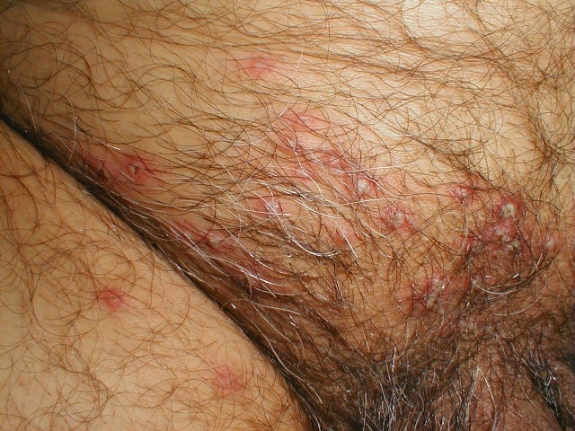 Sign of Genital Herpes on Man