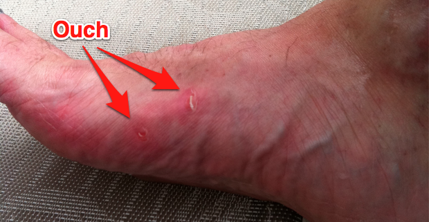 Blister on my foot