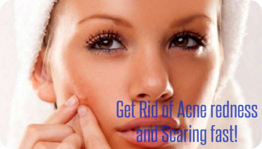 How To Get Rid Of Redness On Face Acne