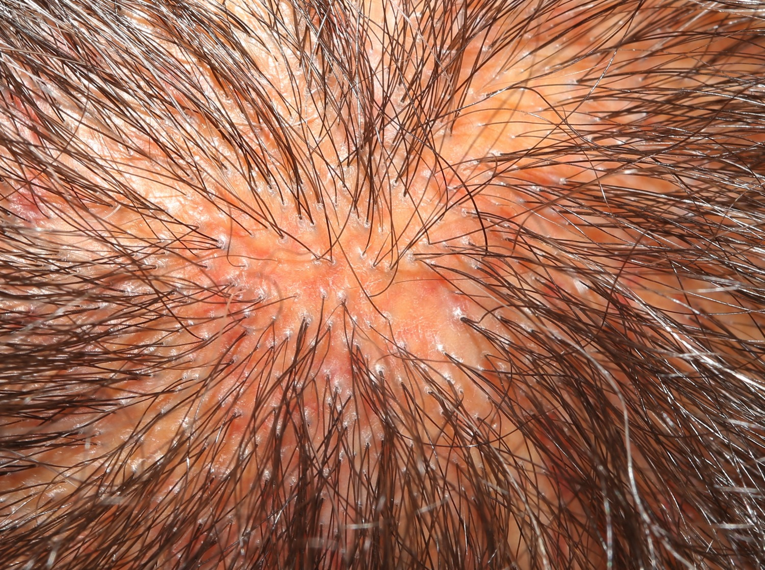 Drugs That Can Cause Hair Loss | Women's Hair Loss Project