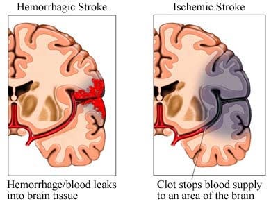 nursing care plan for cerebral vascular accident / stroke | nanda, Skeleton