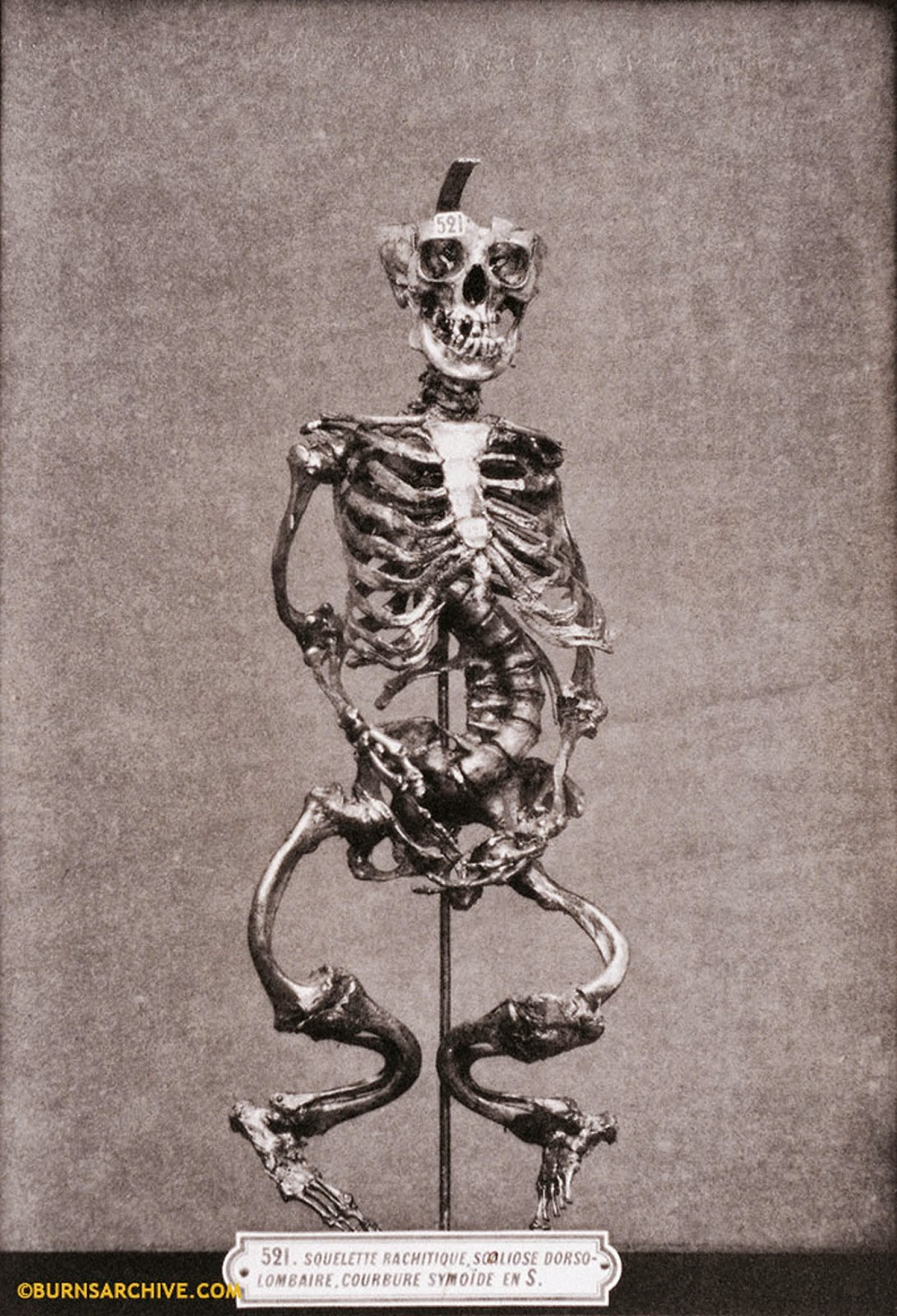Weird Vintage Photos Of Skeletons And Death Pix I Am Bored