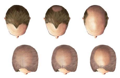 perdida del cabello visto de arriba