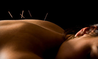 Manual techniques and local acupuncture for cellulite removal