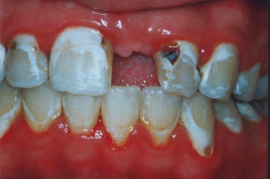 tooth infections