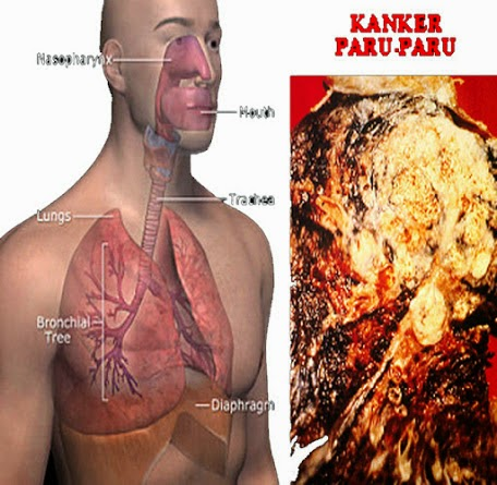 obat kanker Paru tradisional, obat kanker pankreas, obat kanker serviks