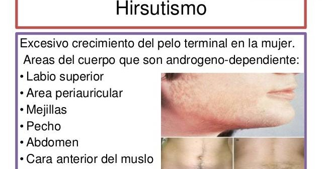 lisinopril and viagra