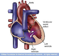 askep VSD (Ventrikular Septal Defek, Blog Keperawatan