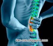 Cara Mudah Mengobati Sakit Pinggang