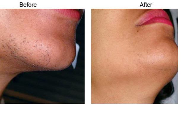 Get Rid of The Chin Hair