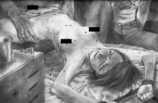 Menina evangélica nua, estuprada e queimada com cigarros