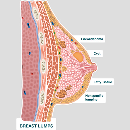 Breast Lumps: Painful, Symptoms, Causes & Types of Breast