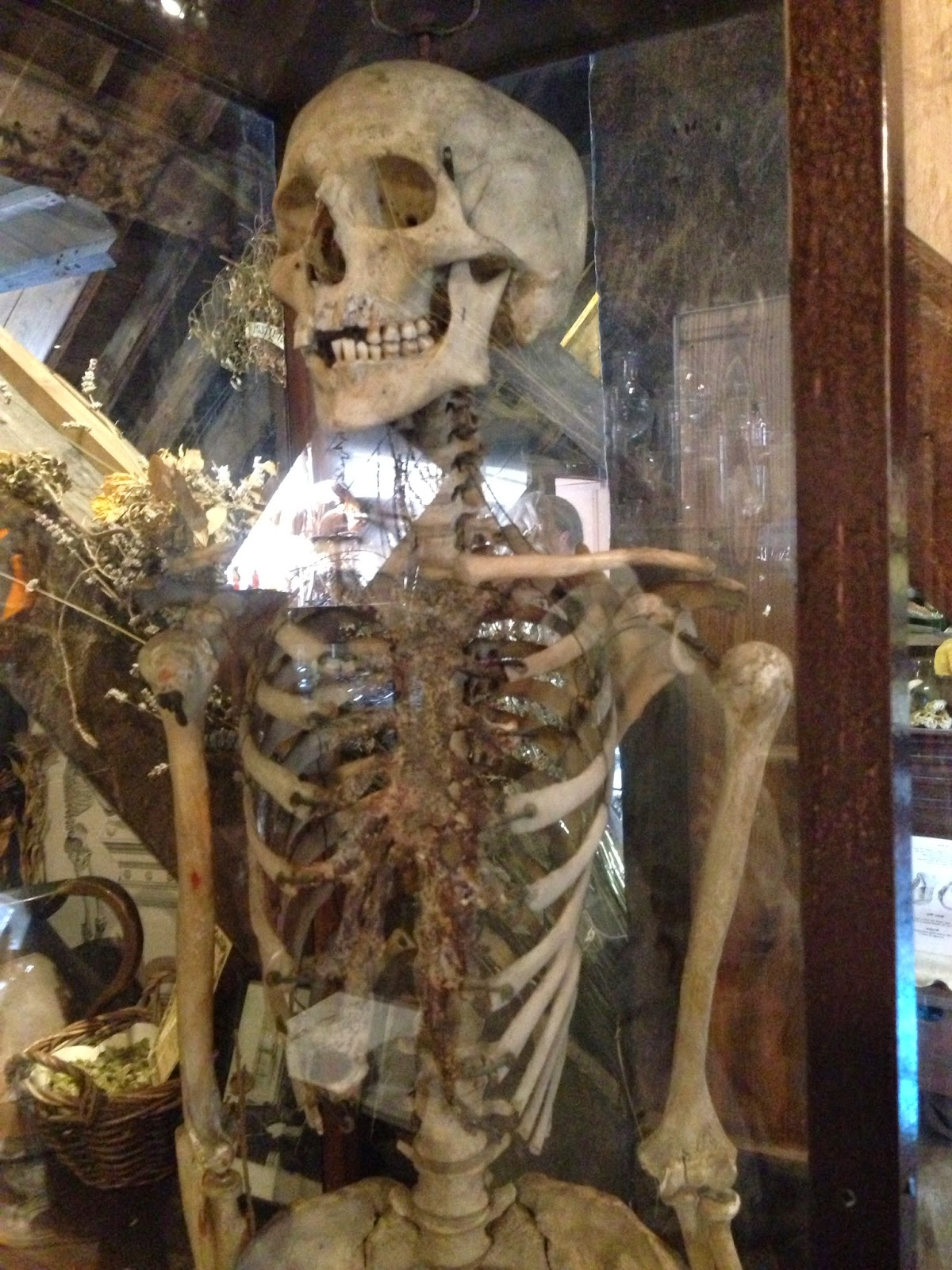 skeleton at the Old Operating Theatre, London