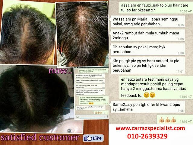testimoni pengguna shampoo zarraz, testimoni set rambut zarraz, never give up hair care zarraz paramedical, serum zarraz, kebaikan set rambut zarraz