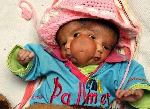طفلة هندية مولودة بوجهين