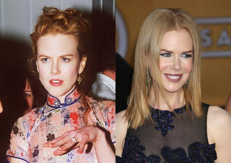 Malgré l'intervalle des années qui sépare ces deux photos, cette star peut garder sa jeunesse grâce à la chirurgie esthétique
