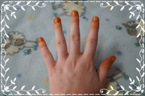 For The First Week Orange Color Will Be A Bit Too Strong And Look Like Nicotine Stains Also Your Fingers Stained About Two Weeks