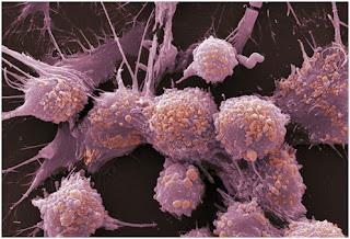 Karakteristik Sel Kanker