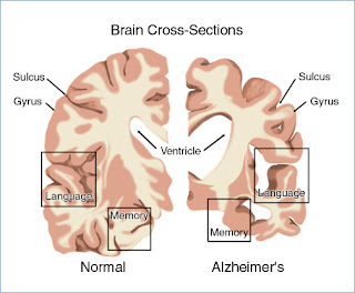 Nursing Diagnosis and Nursing Intervention Alzheimer's Disease