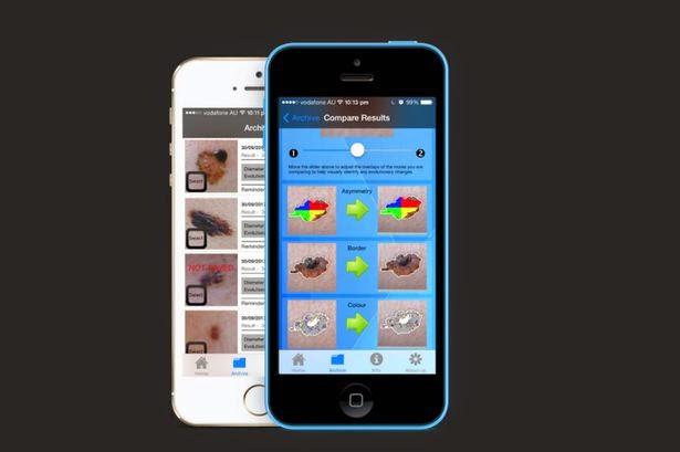 Smartphone untuk mendeteksi kanker kulit