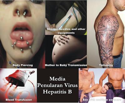 Pengobatan Terbaik Untuk Hepatitis B