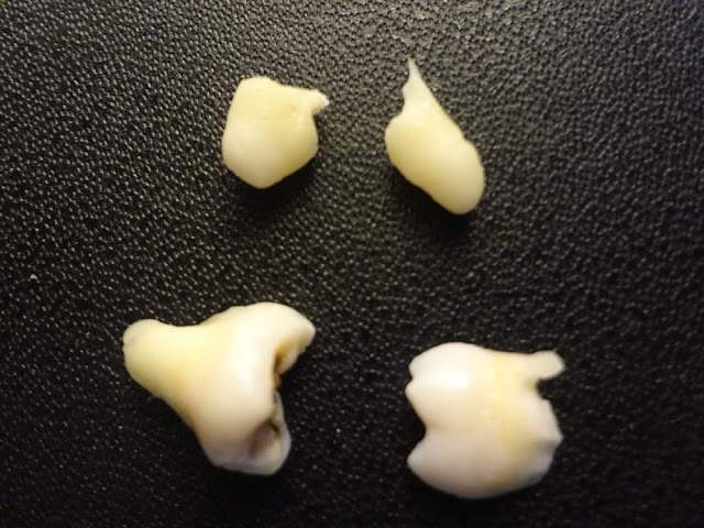 picture of extracted wisdom tooth