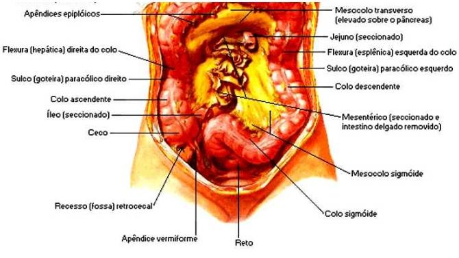 O câncer em questão está localizado no íleo.