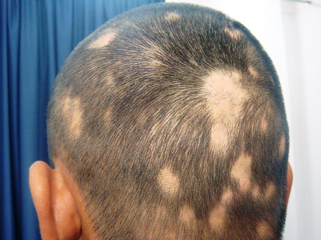 psoriasis cuir chevelu solution